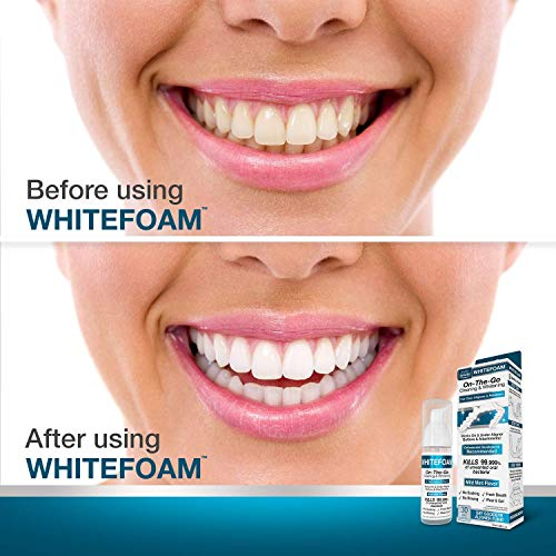 Wholesale WhiteFoam On-the-Go Clear Retainer Cleaner for ...